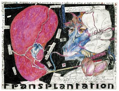Horst Janssen Lebertransplantation
